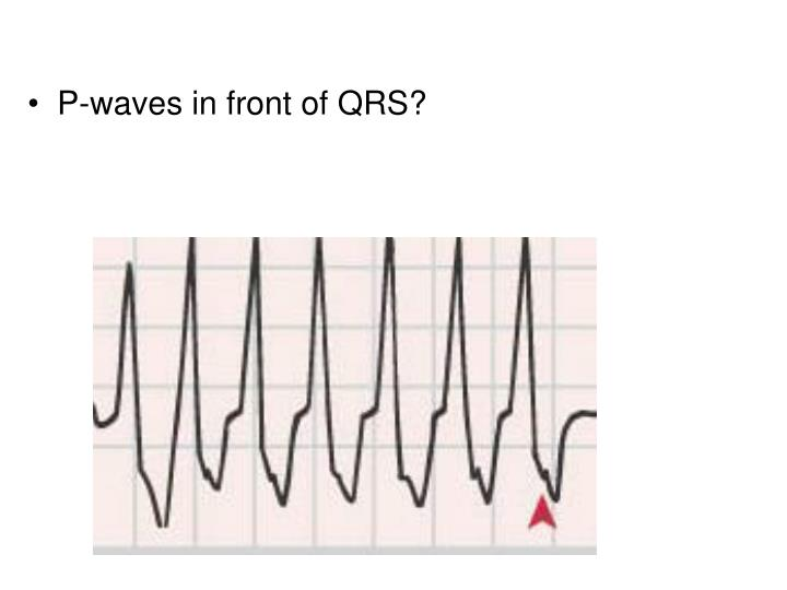P-waves in front of QRS?