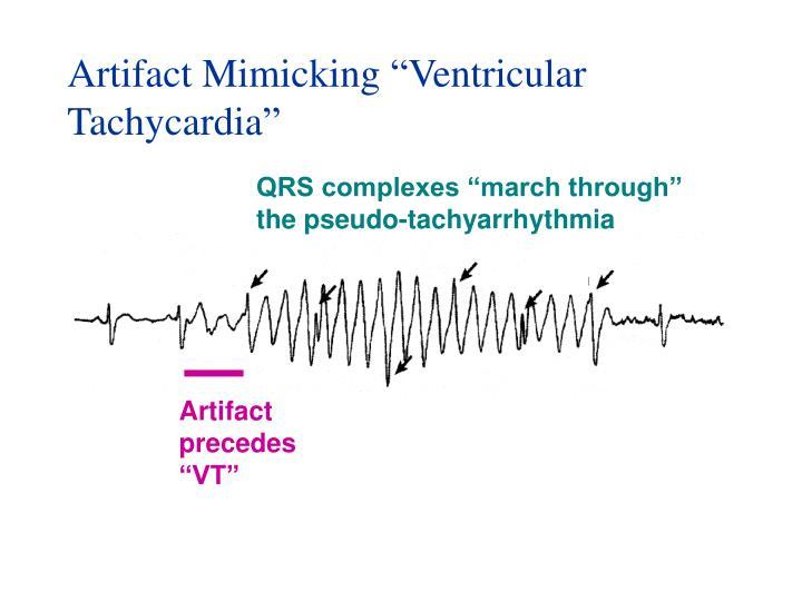 """Artifact Mimicking """"Ventricular Tachycardia"""""""