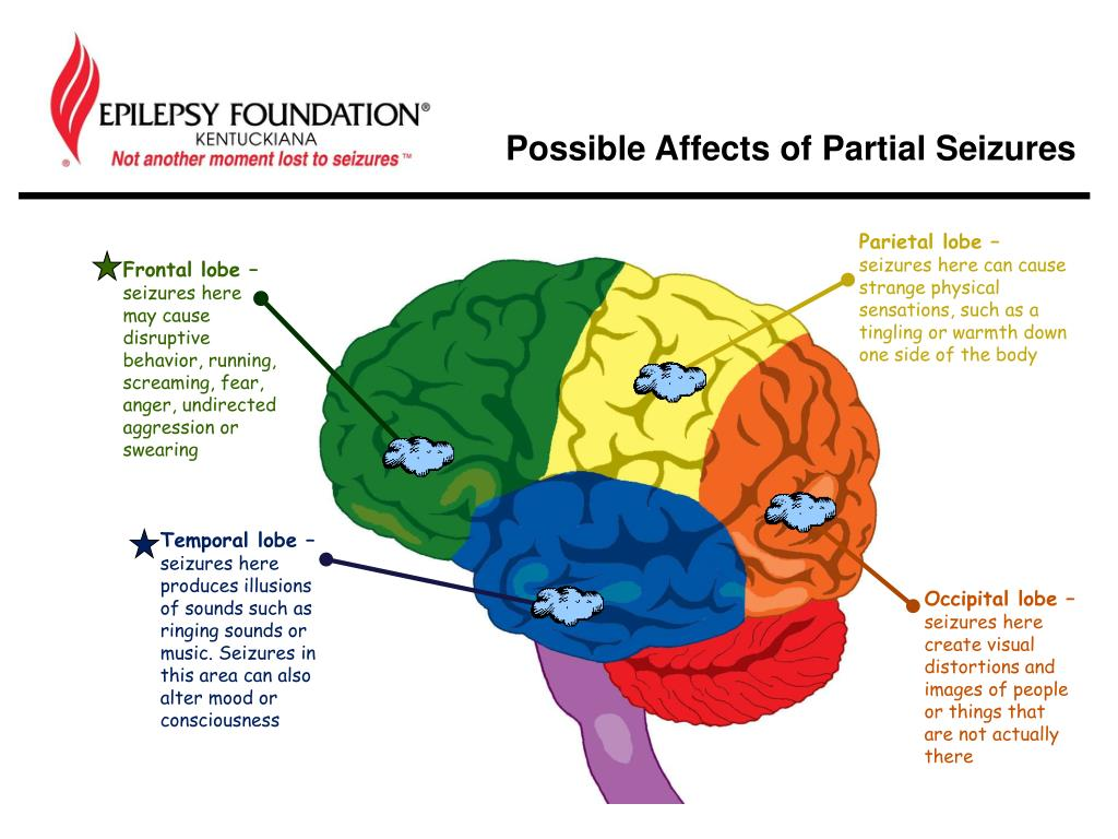PPT - Seizures & Epilepsy PowerPoint Presentation - ID:2914320
