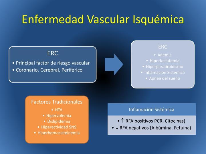 Enfermedad Vascular Isquémica