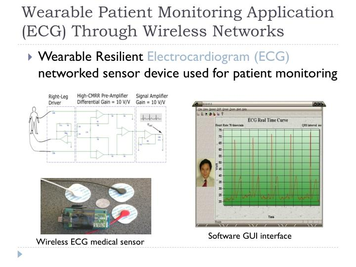 Wearable Patient Monitoring Application (ECG) Through Wireless Networks
