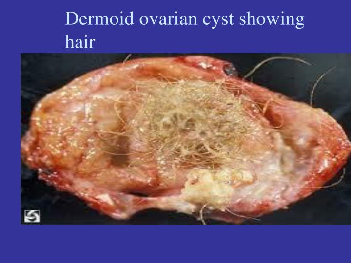 PPT - Ovarian cysts PowerPoint Presentation - ID:2925045