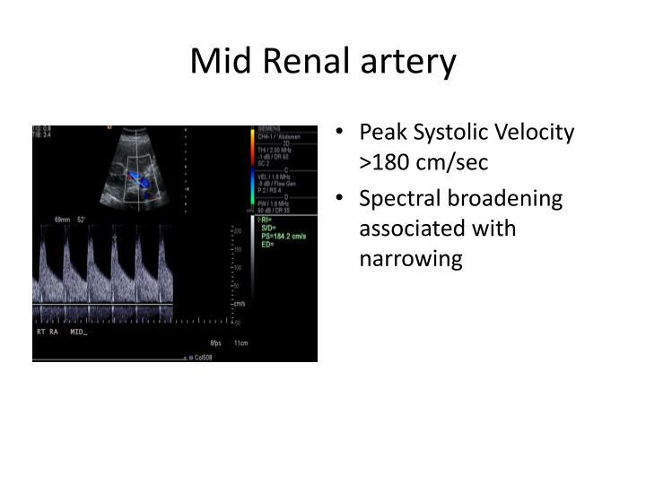Mid Renal artery