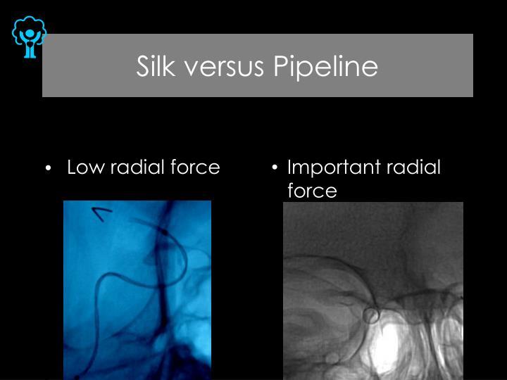 Silk versus Pipeline