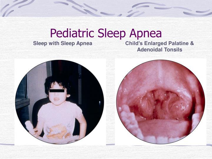 Pediatric Sleep Apnea