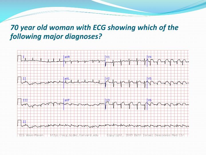 70 year old woman with ECG showing which of the following major diagnoses?