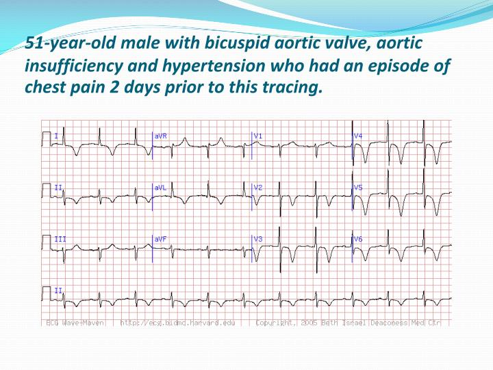 51-year-old male with bicuspid aortic valve, aortic insufficiency and hypertension who had an episode of chest pain 2 days prior to this tracing.