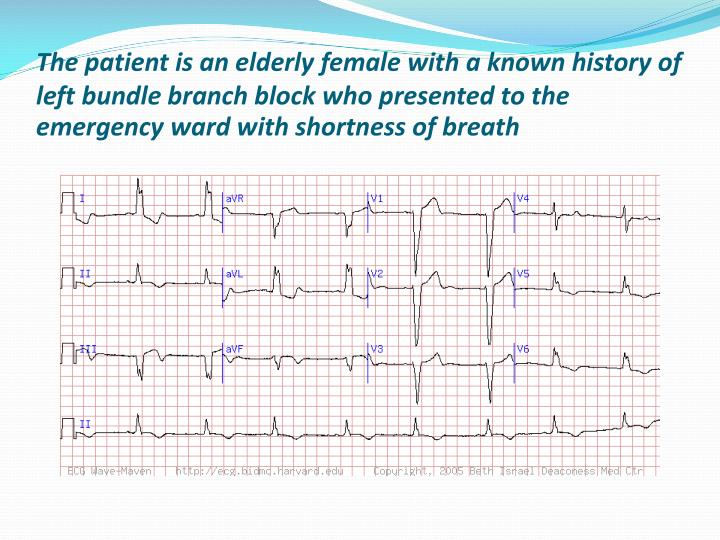 The patient is an elderly female with a known history of left bundle branch block who presented to the emergency ward with shortness of breath