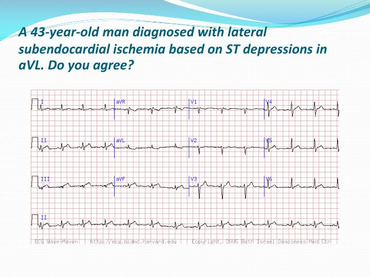 A 43-year-old man diagnosed with lateral subendocardial ischemia based on ST depressions in aVL. Do you agree?