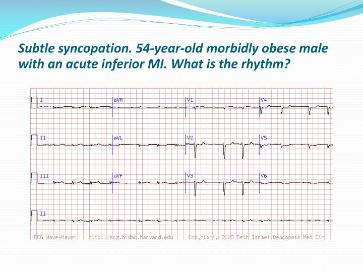 Subtle syncopation. 54-year-old morbidly obese male with an acute inferior MI. What is the rhythm?