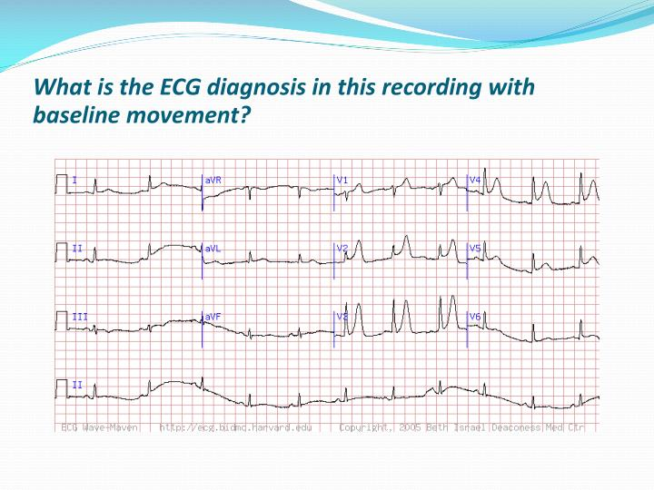 What is the ECG diagnosis in this recording with baseline movement?