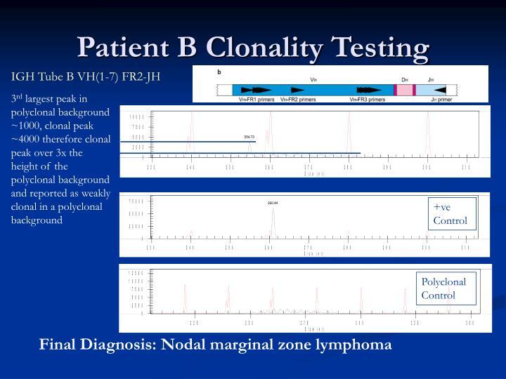 Patient B Clonality Testing