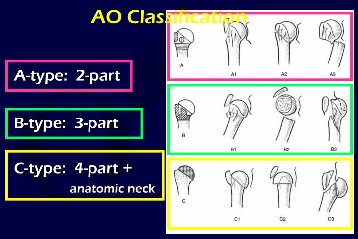 AO Classification
