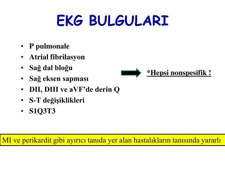EKG BULGULARI