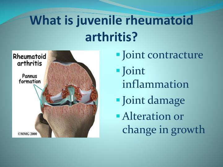 juvenile rheumatoid arthritis research paper Juvenile rheumatoid arthritis is juvenile rheumatoid arthritis/juvenile idiopathic arthritis different from rheumatoid arthritis research & therapy.