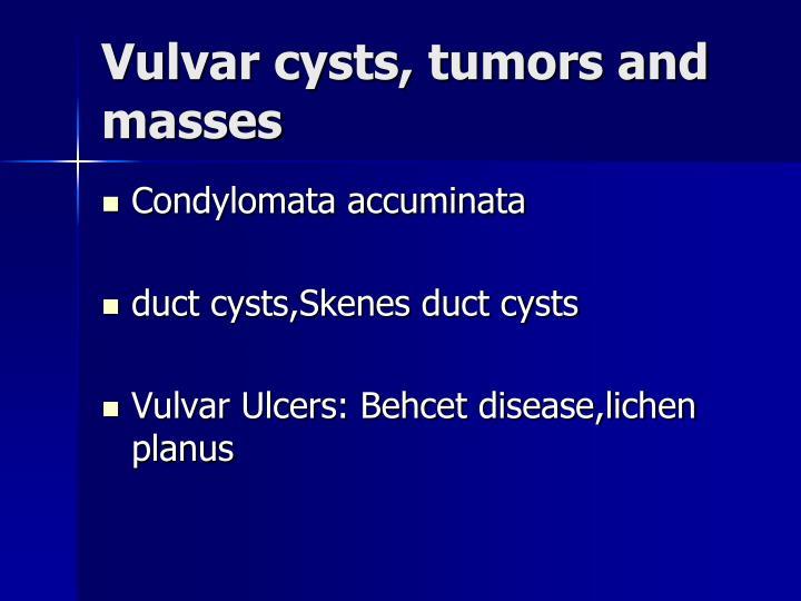 Vulvar cysts, tumors and masses