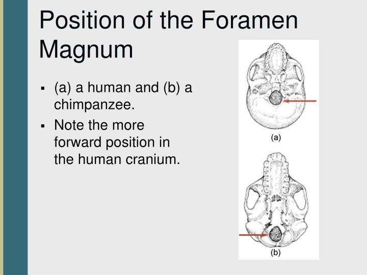 Position of the Foramen Magnum