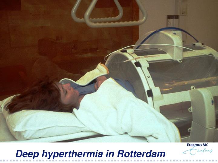 Deep hyperthermia in Rotterdam