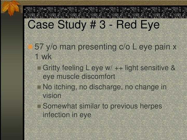 Case Study # 3 - Red Eye