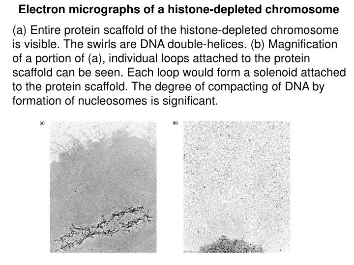 Electron micrographs of a histone-depleted chromosome