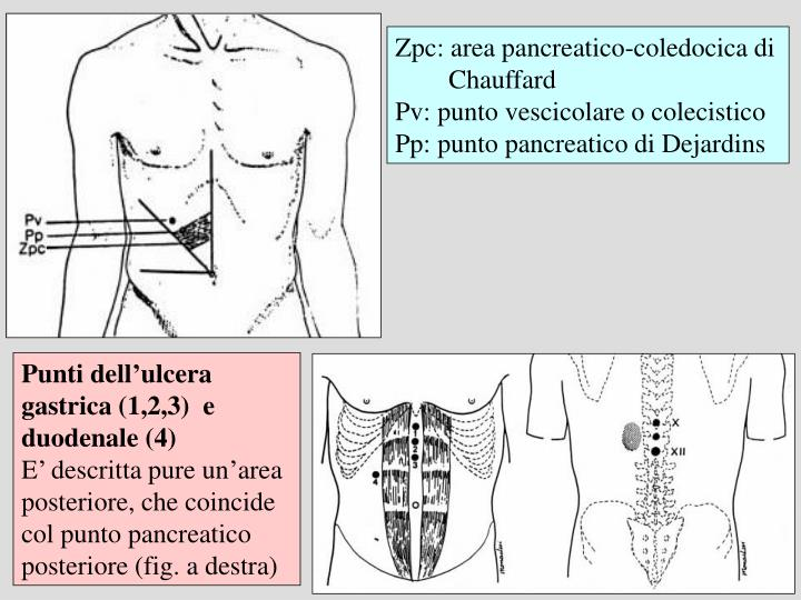 Zpc: area pancreatico-coledocica di