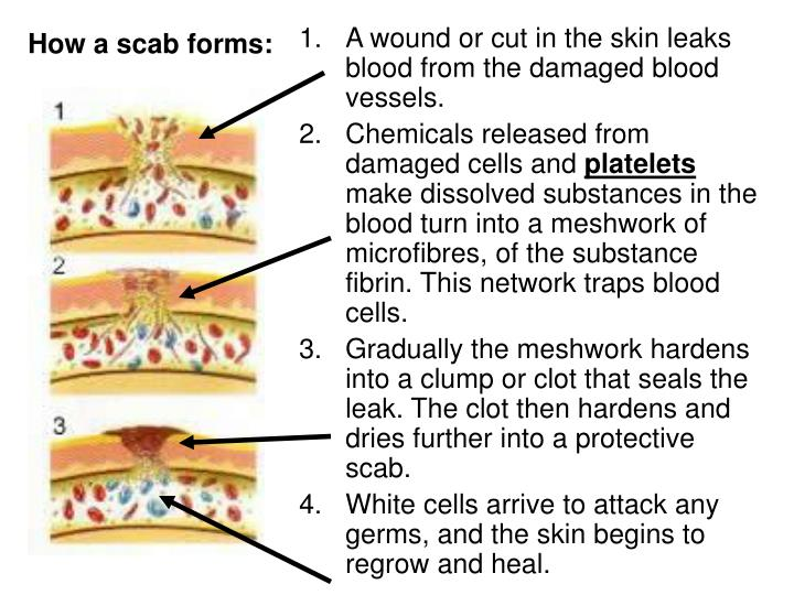 How a scab forms: