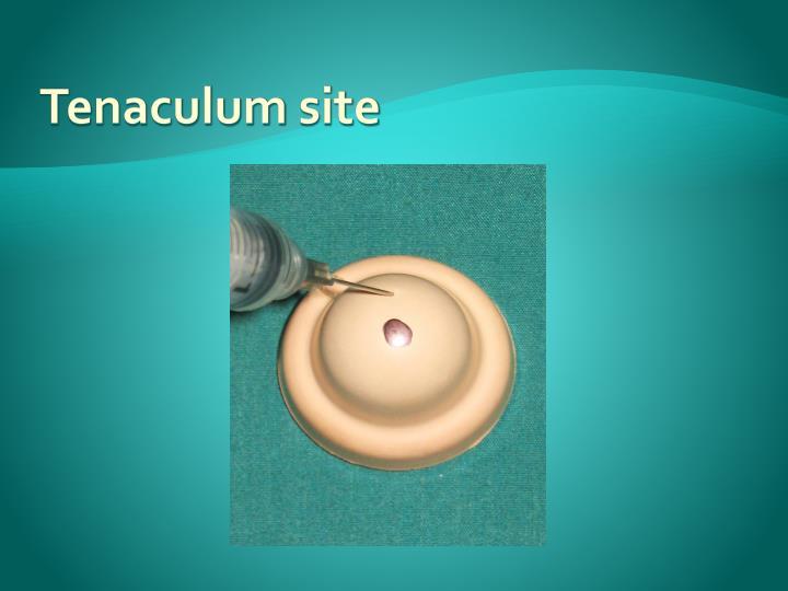 Tenaculum site
