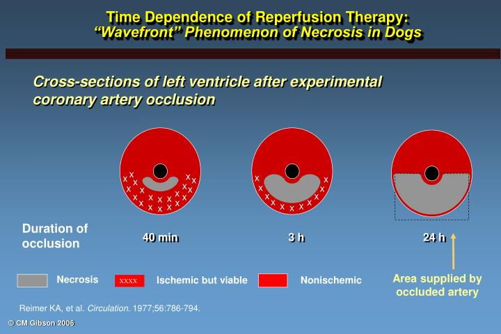 time dependence of reperfusion therapy wavefront phenomenon of necrosis in dogs n.