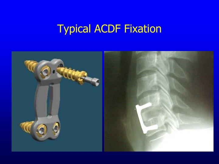 Typical ACDF Fixation