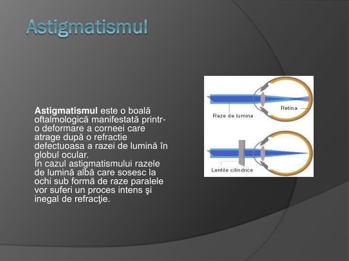 Astigmatismul