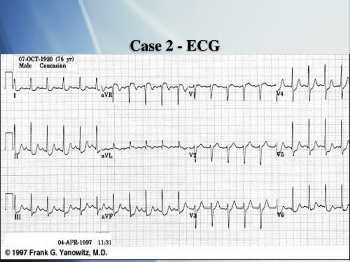 Case 2 - ECG