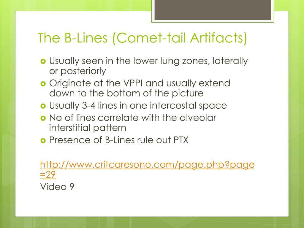 PPT - Journal Club PowerPoint Presentation - ID:3014994
