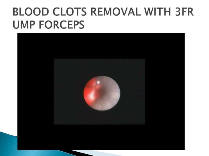 BLOOD CLOTS REMOVAL WITH 3FR UMP FORCEPS
