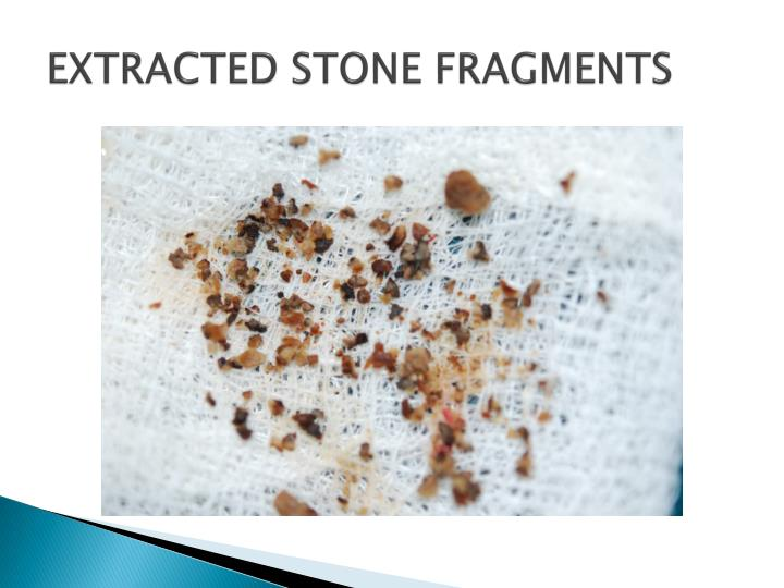 EXTRACTED STONE FRAGMENTS