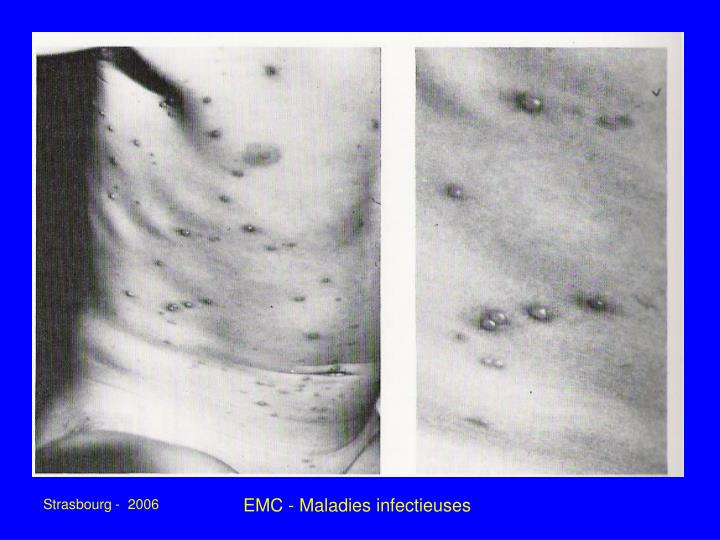 EMC - Maladies infectieuses