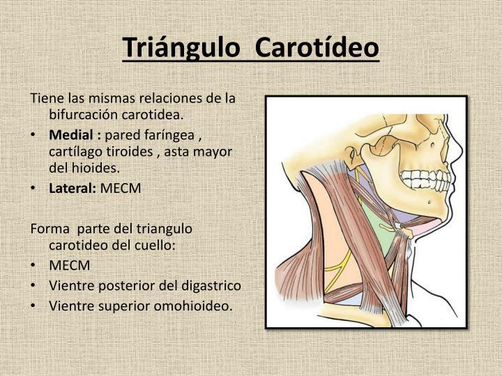 Triángulo  Carotídeo