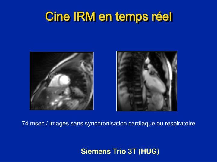 Cine IRM en temps réel