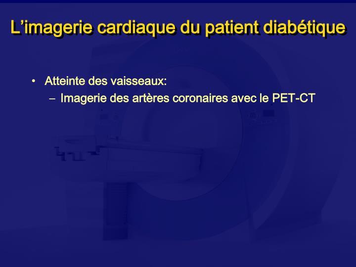 L imagerie cardiaque du patient diab tique