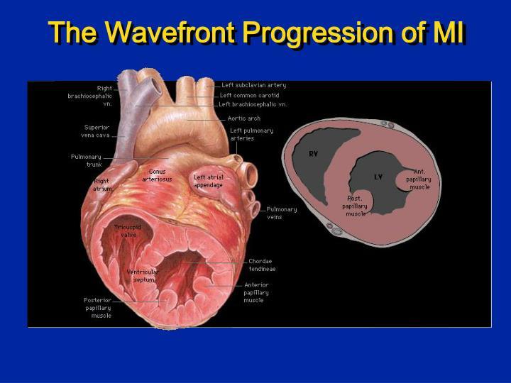 The Wavefront Progression of MI