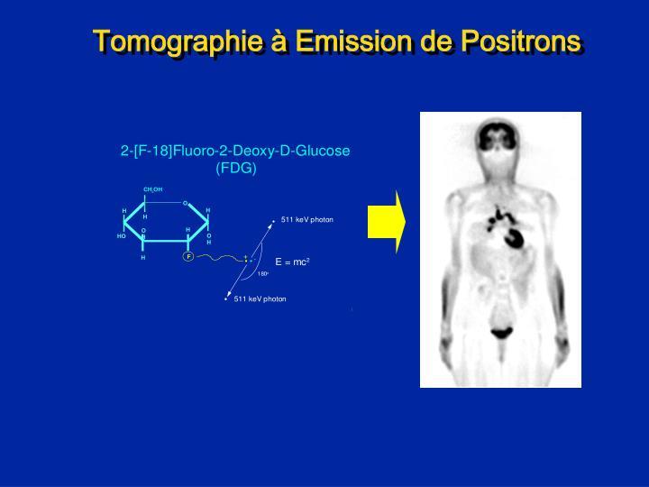 Tomographie à Emission de Positrons