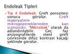 endoleak tipleri3