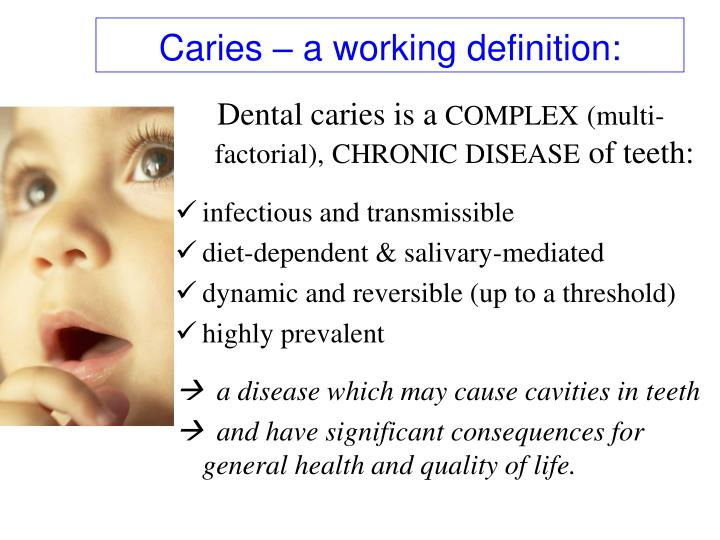 Caries – a working definition: