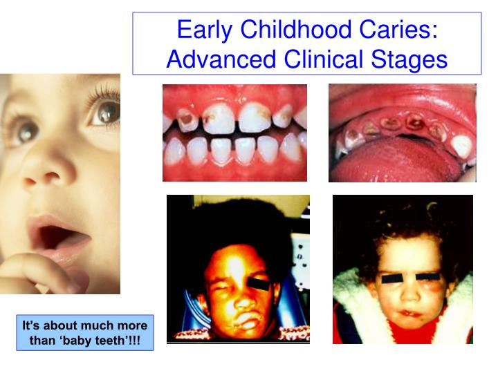 Early Childhood Caries:
