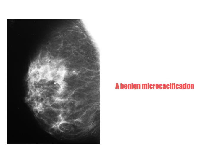 A benign microcacification