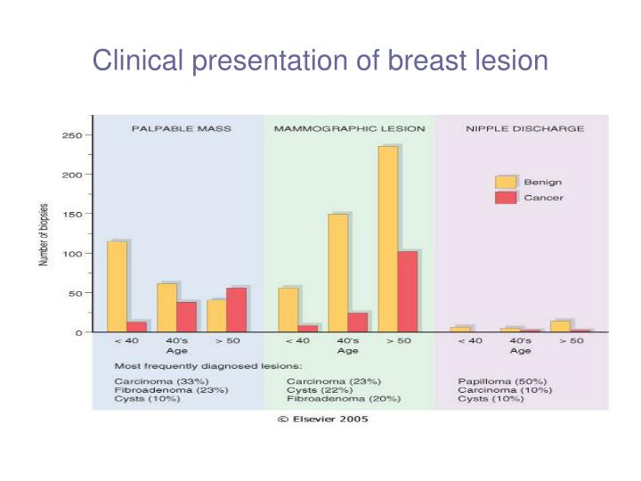 Clinical presentation of breast lesion