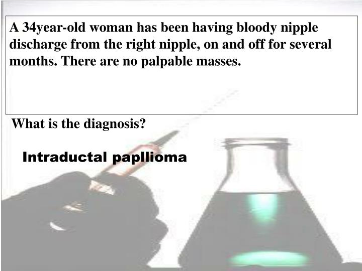 A 34year-old woman has been having bloody nipple discharge from the right nipple, on and off for sev...