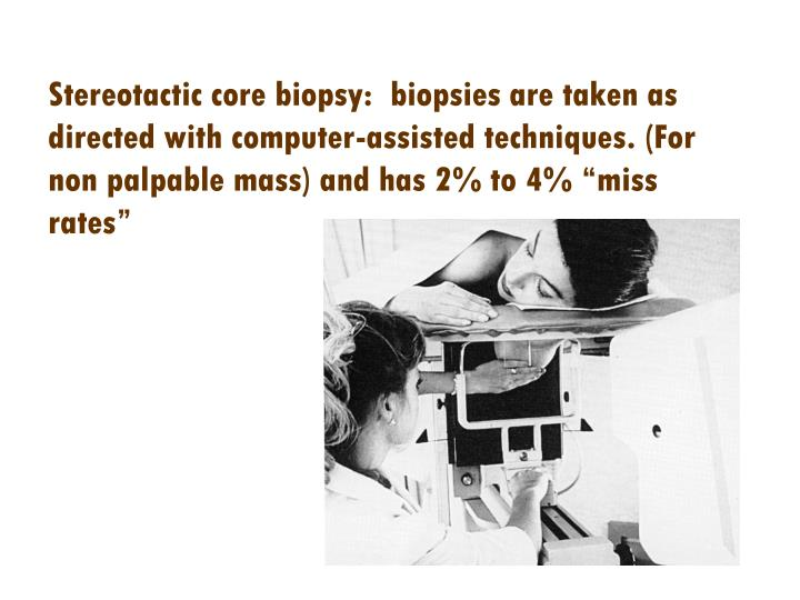 """Stereotactic core biopsy:  biopsies are taken as directed with computer-assisted techniques. (For non palpable mass) and has 2% to 4% """"miss rates"""""""