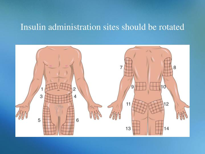 Insulin administration sites should be rotated