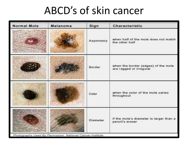 ABCD's of skin cancer