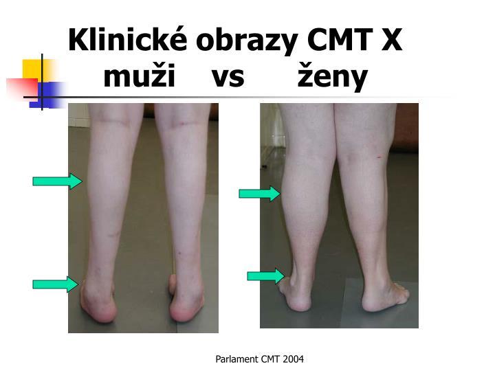 Klinické obrazy CMT X